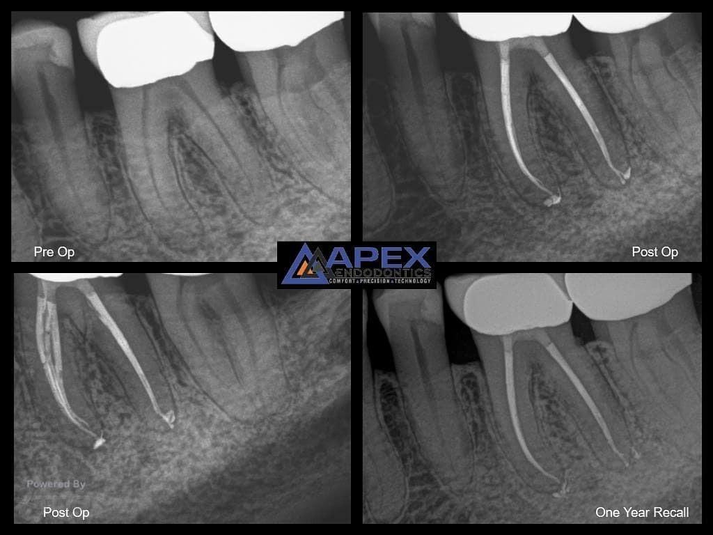 waterlase dental laser